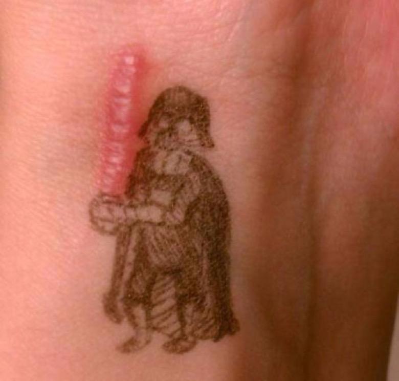 Cacher Ses Cicatrices Avec Des Tatouages Insolites Fenoweb